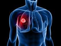 nowotworu płuco Obraz Royalty Free
