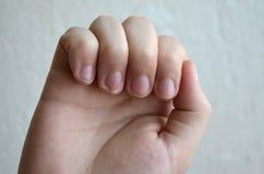 NPsoriasis na gwoździach, problemy z gwoździami obrazy royalty free