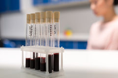 Numbered medical tubes with samples of blood test royalty free stock photography