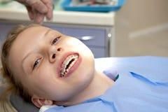 Nuova parentesi graffa ortodontica immagini stock libere da diritti