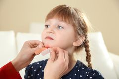 Nurse applying medical patch to little girl`s injured face indoors. stock images