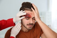 Nurse examining young man`s head injury in clinic. First aid stock image