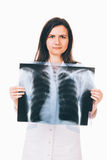 Nurse holding radiogram. Young nurse is holding a lung radiogram in front of her chest - isolated on white background Royalty Free Stock Images