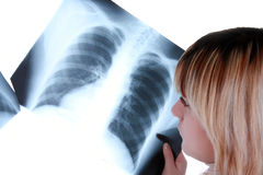 Nurse looking to the x ray Stock Photography