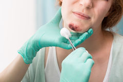 Nurse medicating wound on face Royalty Free Stock Image