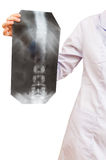 Nurse shows X-ray picture with vertebral column Stock Images