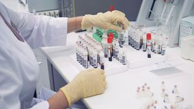 A nurse sorts blood tubes, close up. One nurse sorts special tubes with blood on a table stock video footage