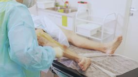 Nurse in sterile clothes disinfects patient leg before varicose vein surgery. Concept of phlebology, sclerotherapy stock footage