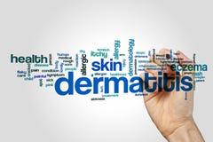 Nuvola di parola della dermatite su fondo grigio royalty illustrazione gratis