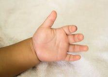 Nyfött behandla som ett barn handen Arkivfoto