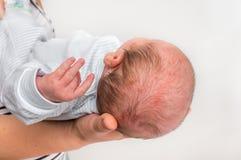 Nyfött behandla som ett barn med överilat för hud Allergisk reaktion efter födelse royaltyfria foton