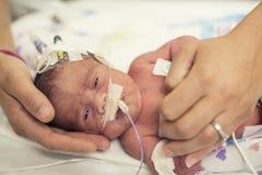 Nyfött för tidigt behandla som ett barn i NICU-intensivvården Arkivfoto