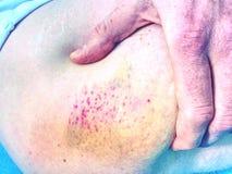 Nytt blåmärke på vit hud Smärtsamt grönt purpurfärgat enormt blåmärke på benet fotografering för bildbyråer