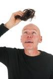 Nytt hår för skallig man royaltyfri foto