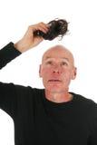 Nytt hår för skallig man arkivbild