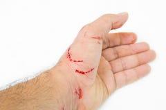 Nytt sår och blod Arkivfoton