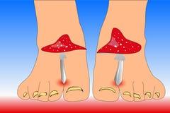 O amanita cresce rapidamente entre os pés dos dedos do pé que imitam o fungo dos dedos do pé ilustração do vetor