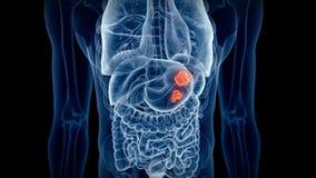 O câncer de estômago video estoque