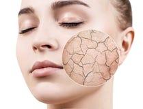 O círculo do zumbido mostra a pele facial seca antes de umedecer imagem de stock