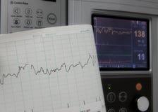 O cardiógrafo mostra a frequência cardíaca fetal Fotografia de Stock