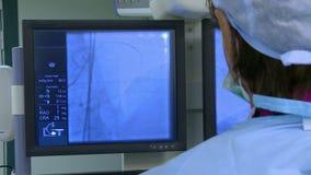 O cirurgião controla a angiografia da operação filme