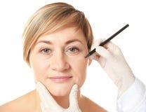 O cirurgião entrega marcas do desenho na cara fêmea para a operação fotografia de stock