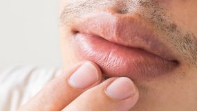 O close up dos bordos equipa cuidados médicos do problema, palavra simples de herpes foto de stock