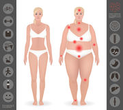 O corpo de uma mulher, densamente e dilui, dor aponta, detalhou o vetor mim Imagem de Stock