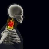O corpo humano (órgãos) por raios X no fundo preto fotografia de stock royalty free