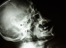 O crânio do ser humano normal Fotos de Stock Royalty Free