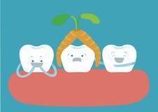 O dente aéreo da cenoura e o outro dente divertem-se ilustração royalty free