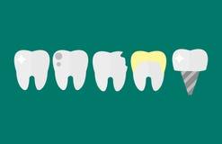 O dente liso do dentista dos cuidados médicos implanta o conceito dos cuidados médicos da pesquisa e o stomatology médicos da hig Foto de Stock Royalty Free