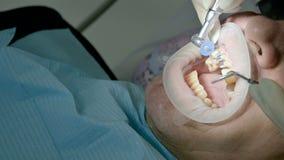 O dentista fêmea com um assistente examina a boca do paciente de um homem de um homem envelhecido Trabalho profissional chave alt filme