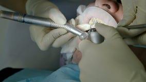 O dentista f?mea com um assistente examina a boca do paciente de um homem de um homem envelhecido Trabalho profissional chave alt video estoque