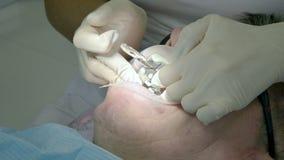 O dentista f?mea com um assistente examina a boca do paciente de um homem de um homem envelhecido Trabalho profissional chave alt filme