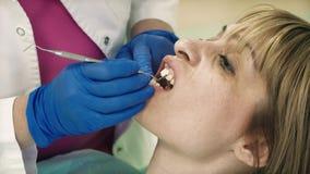 O dentista põe os folheados dentais pacientes video estoque
