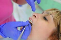 O dentista toma uma medida dos dentes Fotos de Stock