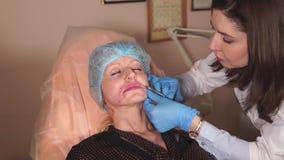 O doutor de Thw faz as injeções finais com Botox para remover as dobras nasolabial video estoque