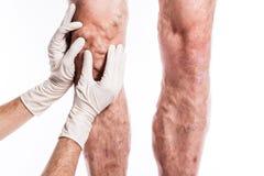 O doutor em luvas médicas examina uma pessoa com veias varicosas o fotos de stock