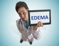 O doutor está mostrando o diagnóstico do edema na tabuleta Vista da parte superior imagem de stock