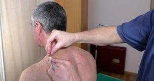 O doutor faz a área do colar da acupuntura video estoque