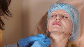 O esteticista do doutor injeta a cânula no mordente de uma mulher de meia idade vídeos de arquivo