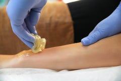 O esteticista remove o cabelo de uma mão do ` s da mulher imagens de stock royalty free