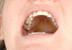 O furo no dente e o tratamento de canais dentais Tratamento do periodontitis na clínica dental imagem de stock