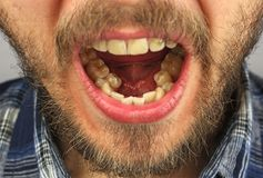 O homem com uma barba abriu sua boca para o exame dental do lowe Imagens de Stock