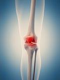 O joelho doloroso Fotos de Stock Royalty Free
