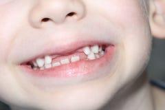 O menino sorri, seus dentes de leite é visível Perda de dentes de leite foto de stock royalty free