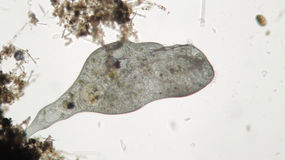 O micro-organismo Stentor ou os animálculos da trombeta filtro-estão alimentando, protozoário heterotrófico ciliate Foto de Stock