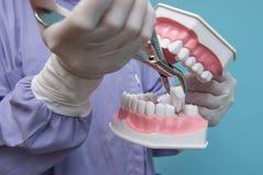 O modelo dental é usado à demonstração da extração do dente por doutores fotos de stock royalty free