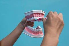 O modelo dental é usado para ensinar como escovar corretamente os dentes por doutores imagem de stock royalty free